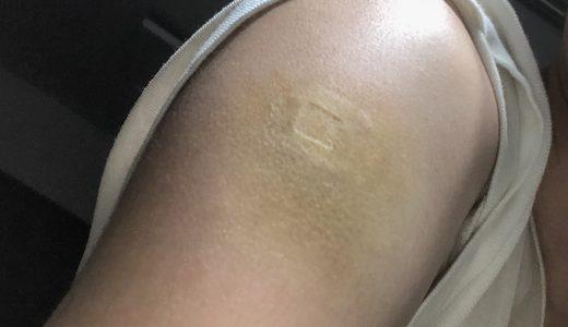 【閲覧注意】ワクチン2回目で黄色いモデルナアームが発症【30代男性】